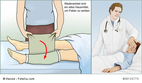 Wadenwickel gegen Fieber