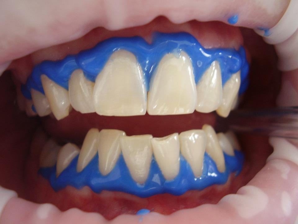 Zähne aufhellen durch Bleaching