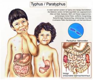 Typhus-Ansteckungsfahr